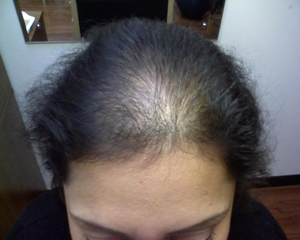 Clonazione capelli