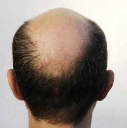 Autotrapianto capelli costi